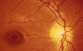 το προφίλ του οφθαλμολογικού κέντρου Aktis