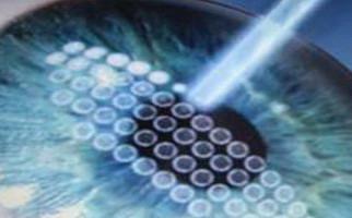 LASIK στο οφθαλμολογικό κέντρο Aktis