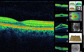 OCT Cirrus HD optical coherence tomography