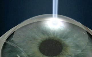 Διαθλαστικές επεμβάσεις με laser στο Aktis