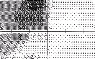 Αυτόματη οπτική περιμετρία HFA