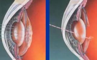Ellex Super Q Yag laser καψουλοτομή & ιριδοτομή