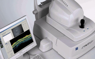 OCT Stratus optical coherence tomography