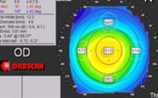 Προεγχειρητικός έλεγχος στο οφθαλμολογικό κέντρο Aktis